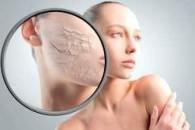 Як зволожити шкіру обличчя в домашніх умовах